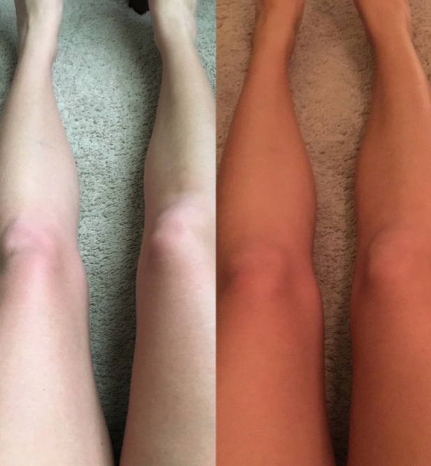 before and after legs